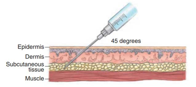 Picture showing the correct way to administer an subcutaneous injection